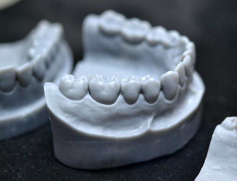 Tree Models | Impressão 3D para odontologia